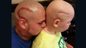أب يضع وشماً على شكل ندبة لدعم طفله في مواجهة سرطان المخ