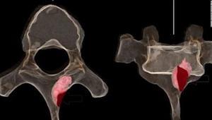 ورم سرطاني في عظام أحفورة عمرها أكثر من مليون عام
