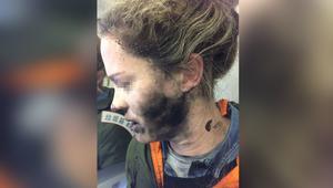 انفجار سماعات برأس شابة برحلة جوية