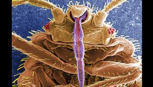 هذه الحشرات تختبئ في فراشك..احذر منها