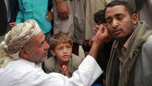 رجل يضع الكحل على عينيه لكونها من التقاليد المحلية في رمضان باليمن.