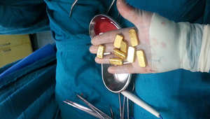 إخراج 12 سبيكة ذهبية من بطن هندي