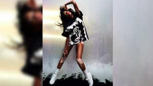 عارضة الأزياء ويني هارلو تحارب المفاهيم المرتبطة بمرض البهاق