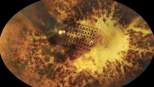خطوة طبية تكنولوجية.. اختراع يعيد للمصابين بالعمى جزءاً من نظرهم