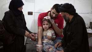 طفل سوري يتلقى الاسعاف في مستشفى ميداني بمدينة دوما قرب دمشق 3 سبتمبر/ أيلول 2014