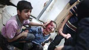 طفل يساعد شقيقه المصاب في انتظار تلقي العلاج في أحد المستشفيات الميدانية في دوما ، وقد أصيب في غارة شنها طيران النظام السوري على المدينة 11 سبتمبر/ أيلول 2014