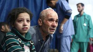 سوري مصاب يتلقى العلاج في مستشفى ميداني بدوما بضواحي دمشق، نوفمبر/ تشرين الثاني 2014