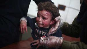 طفل سوري جريح في أحد المشافي الميدانية في دوما شمال شرق دمشف بعد غارة لطيران النظام 21 يناير/ كانون الثاني 2