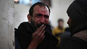 سوري يبكي فيما ينتظر تلقي العلاج في أحد المستشفيات الميدانية في مدينة دوما، 5 فبراير/ شباط 2015