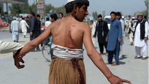 أفغاني مصاب في تفجير انتحاري استهدف قافلة للناتو في جلال أباد، 10 أبريل / نيسان 2015