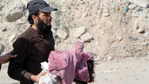 رجل يحمل طفلة اصيبت بغارة جوية