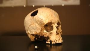 هل تصدق؟ شفرات من العصر الحجري تستعمل في جراحات اليوم
