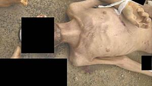 آثار ضرب تظهر على إحدى الجثث الهزيلة
