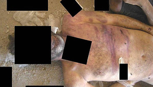 إصابات على جثة هزيلة يزعم أنها بسبب الضرب باستخدام أدوات مشابهة للصولجان