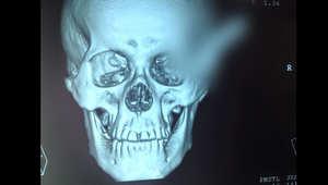 رجل ينجو بأعجوبة بعد طعنه لتظل السكين في رأسه ساعتين حتى وصوله إلى المستشفى