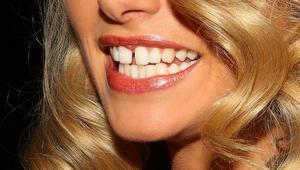 حافظي على أسنان قوية وجميلة خلال فترة الحمل