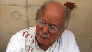 رجل على ملابسة بقع من الدماء في موقع التفجير بمسجد للشيعية بالكويت