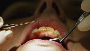 هل أنت مصاب بجفاف الفم؟ إذا إليك بعض النصائح المفيدة