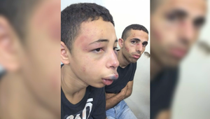 عائلة فتى أمريكي من أصل فلسطيني: عناصر أمنية إسرائيلية ضربته بعنف