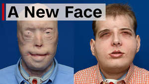 بعد حروق بالغة، رجل إطفاء يحصل على وجه جديد