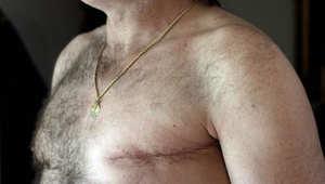 دراسة:  إقبال ذكوري على عمليات استئصال الثدي المزدوجة