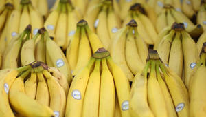 من علاج فقر الدم إلى محاربة الاكتئاب..7 أسباب لتناول الموز يومياً