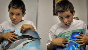سحب نتائج دراسة ربطت بين لقاحات الأطفال وانتشار مرض التوحد