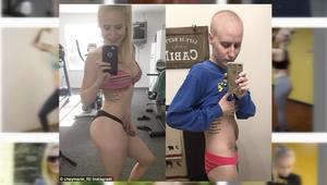 شاهد كيف تغير شكل هذه الحسناء بسبب السرطان