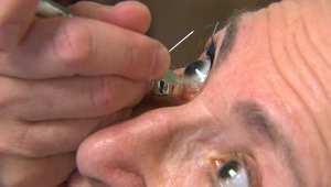 """حقنة قاسية """"في بؤبؤ العين"""" قد تكون الوسيلة الوحيدة لمواجهة فقدان البصر"""