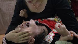 """""""ختان الفتاة عفتها"""".. تشويه الأعضاء التناسلية لتجميل الفتاة بعين الرجل"""