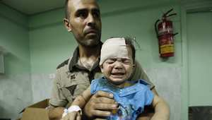 طفل مصاب يحمله والده