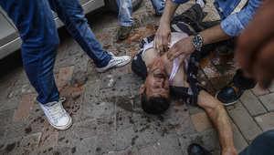 مجموعة من الأشخاص يسعفون شابا أصيب برصاصة في مواجهات مع قوات الشرطة التركية