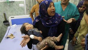 سيدة فلسطينية تنقل طفلها الجريح إلى أحد مستشفيات رفح