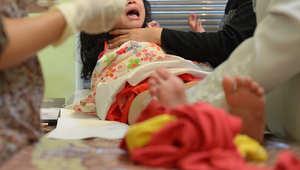 عملية ختان في اندونيسيا