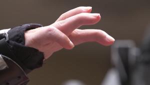 شاهد.. جهاز تجريبي يساعد مشلولاً بتحريك يده