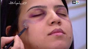 """قناة مغربية تعتذر للمشاهدين بسبب """"كيف تتخلصين من آثار العنف على وجهك؟"""""""