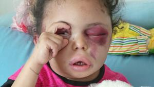 بثينة تفتح عيون العالم على الصراع اليمني