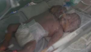 حصرياً عبر عدسة CNN في غزة: توأم سيامي.. رأسان بجسد واحد
