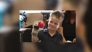 نجار يقطع أصابعه ويصنع يد آلية بالطابعة الثلاثية الأبعاد