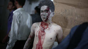 أحد الأطفال السوريين الجرحى في منطقة دوما قرب العاصمة دمشق