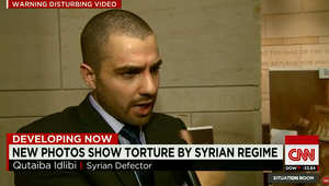 منشق سوري يروي لـCNN كيف يبدأ التعذيب في سجون النظام: فحص طبي وتحسس حجم العضلات لمعرفة أي مرحلة تعذيب ستبدأ