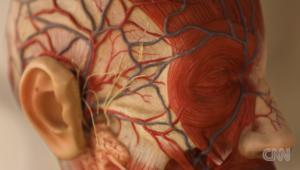 اختراع يساعد على الاحتفاظ بالشعر خلال العلاج الكيميائي