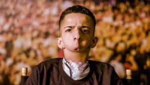 هذا المراهق وُلد من دون حنك..يوصل صوته للعالم