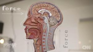 ما هو ارتجاج الدماغ؟