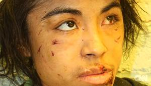 شابة تنجو بحياتها بعد خمس سنوات من العبودية والضرب والتعذيب