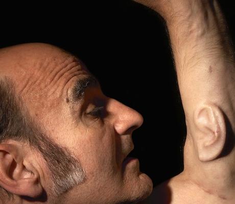 """هذا الرجل تنمو """"أذن ثالثة"""" بيده"""