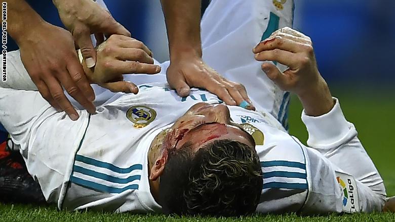 هكذا تم علاج رونالدو من الإصابة الخطرة التي تعرض لها في مباراة ديبورتيفو